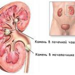 Мочекаменная болезнь (уролитиаз): что нужно знать и как лечиться
