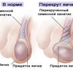 Перекрут яичек и гидаты — обращаемся к врачу вовремя