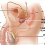 Везикулит – воспаление семенных пузырьков