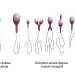 Когда в эякуляте большое количество аномальных сперматозоидов — тератозооспермия