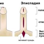 Эписпадия — порок развития мочеполовой системы. К нормальной жизни вернет операция