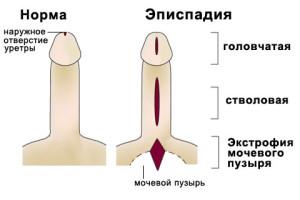 Эписпадия виды