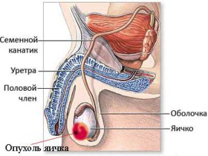 Опухоль яичек