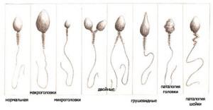 Патологические спермии