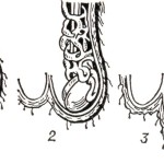 Расширены вены в мошонке? Это — варикоцеле