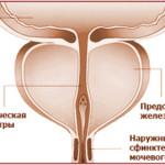 Склероз предстательной железы – как проявляется и чем опасен
