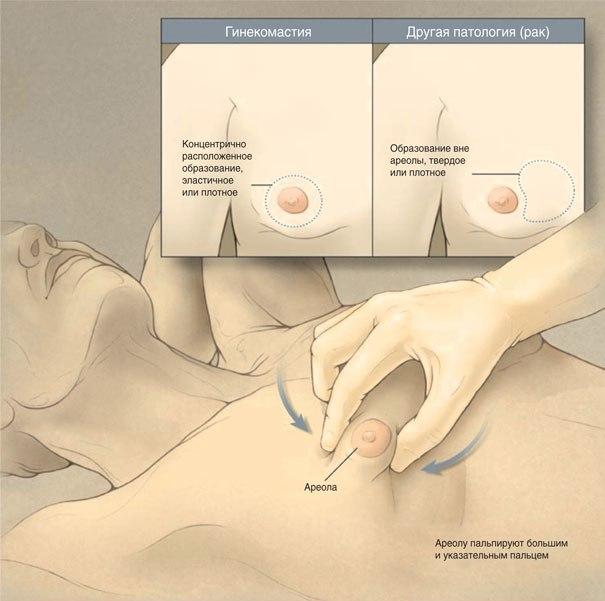 Новые методы лечения аллергического ринита