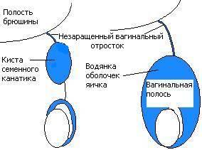 киста семенного канатика лечение