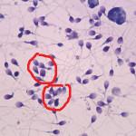 Нормозооспермия — когда показатели спермы в норме, а зачать детей не получается