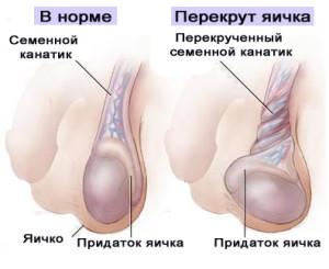 Пропадает левое яичко во время секса