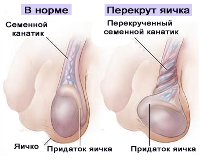 Могут ли при начале беременности болеть ноги