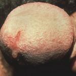 Выделение жидкости из мочеиспускательного канала — простаторея