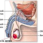 Семинома яичка – скрытая опасность