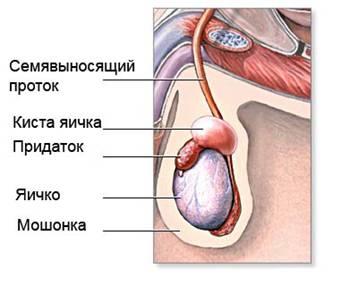 опухоль яичка у мужчин причины