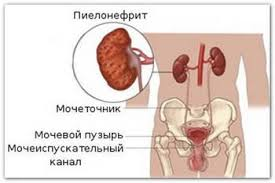симптомы тубулоинтерстициального нефрита