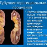 Особенности острого и хронического тубулоинтерстициального нефрита