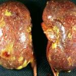 Хроническое воспаление почек (нефрит)