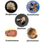 Нефролитиаз почек и виды камней в почках