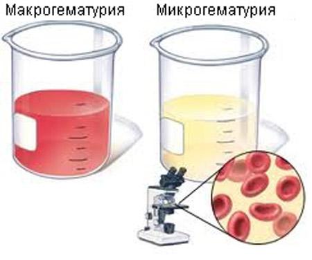 повышенное содержание холестерина в крови причины лечение
