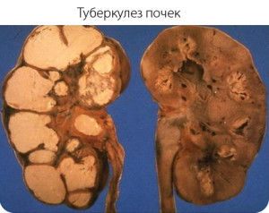 Почечный туберкулез