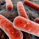 Как проявляется туберкулез почек?
