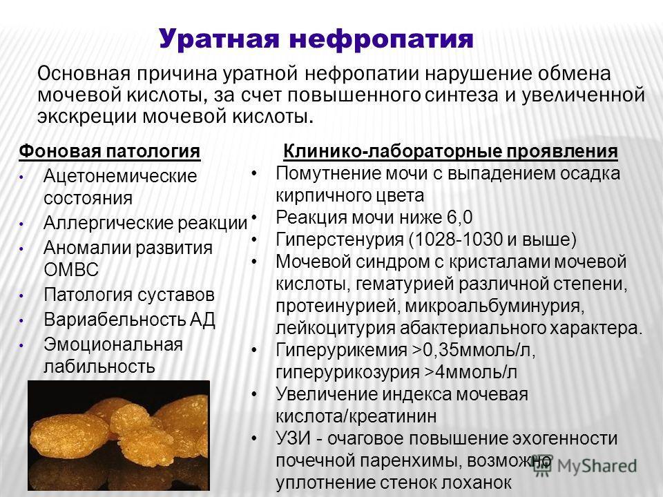Дизметаболические нефропатии у детей