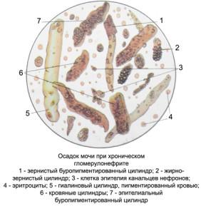 Цилиндры в моче