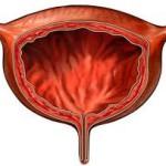 Важное о туберкулезе мочевого пузыря