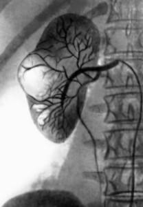 Сеоективная почечная артериография