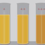 Почему в моче повышается билирубин?