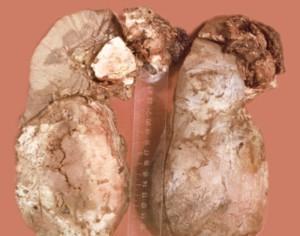 Попиллярный некроз