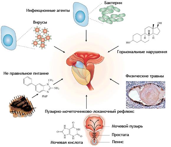 Хронический бактериальный простатит причины возникновения