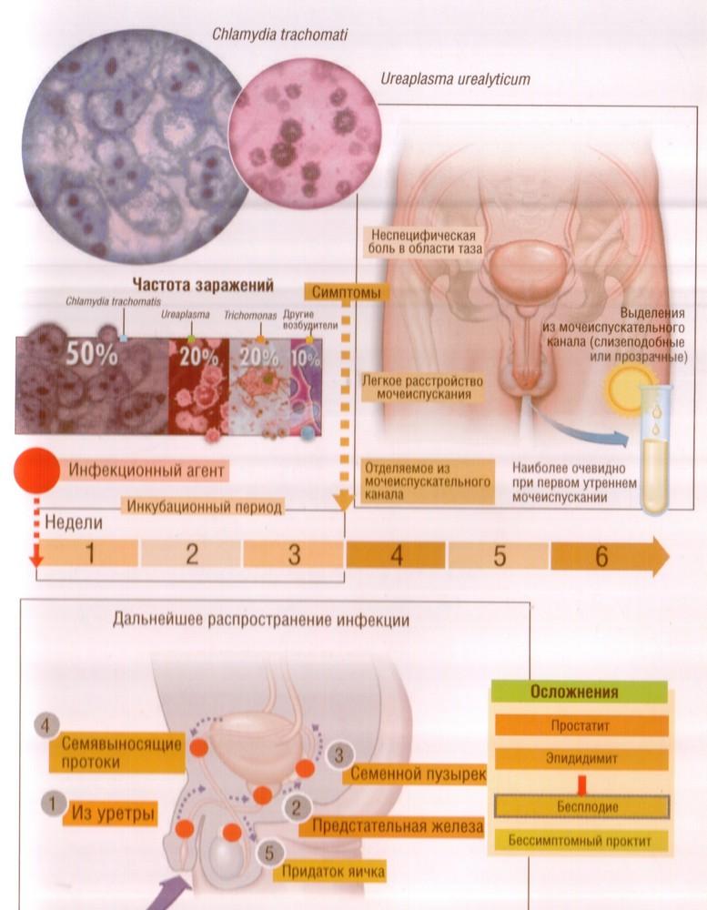 Нарушение цикла после лечения уреаплазмы - Интересные статьи и факты! Axonopal.ru