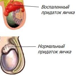 Воспаление придатка яичка